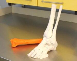 Der 3D-Druck machts möglich: Anhand eines Modells bekommen Chirurgen einen plastischen Eindruck einer Verletzung. (Foto: © Klinikum Solingen)
