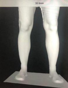 Auf dem Tablet können sich die Patienten ihre beine als 3D-Model anschauen. (Foto: © Sanitätshaus Köppchen)